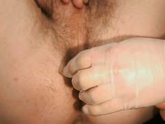 Young stud gets hairy ass fingered by doctor with speculum