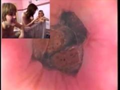 Kamera im arsch anal ass deep fuck
