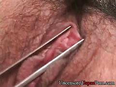 Uncensored japanese mediacal torture fetish play