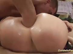 Extreme anal prolapse